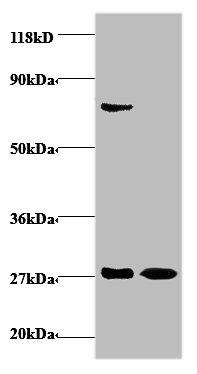 IFNG Polyclonal Antibody