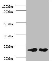 IL6 Polyclonal Antibody