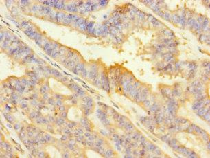 ITGA2 Polyclonal Antibody
