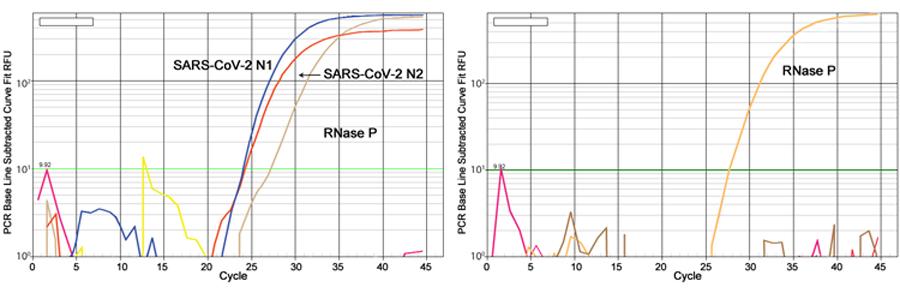 EpiQuik Viral RNA Extraction Fast Kit